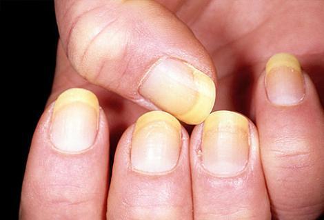 как выглядит грибок ногтей на руках фото