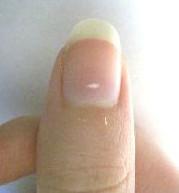 на ногте большого пальца белая полоска