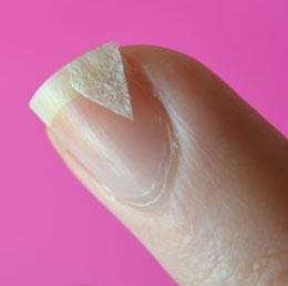 крошатся ногти