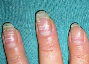 Почему появляются полоски на ногтях рук