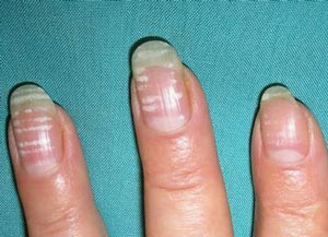 На ногтях появились