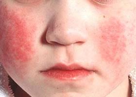 на лице сыпь при скарлатине у детей фото