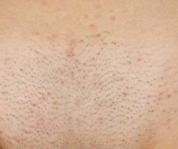 Уход за кожей интимной зоны после бритья