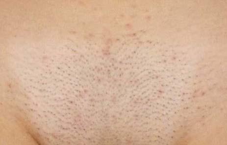 как удалить волосы перекисью водорода