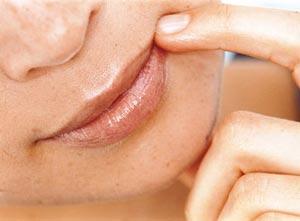 от чего появляются и как вылечить заеды на губах