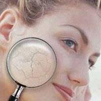 Как ухаживать за сухой кожей лица