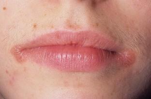 Причины почему появляются заеды на уголках рта фото