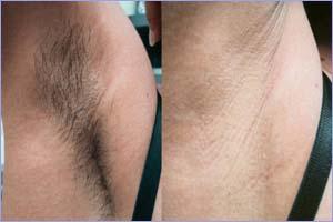 Эпиляция подмышек эпилятором до и после фото