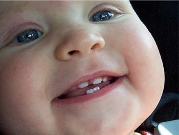 кариес и нужно ли лечить молочные зубы