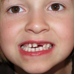 Что делать когда выпадают молочные зубы