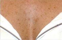 пигментные пятна на коже фото