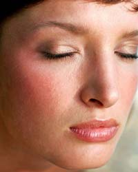 покраснение кожи лица и шелушение