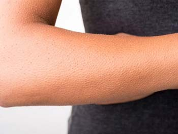 гусиная кожа на руках фото