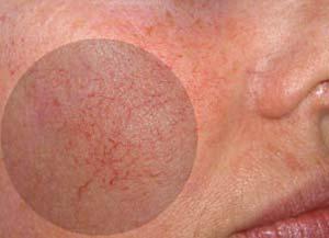 на фото кровеносные красные сосуды на лице