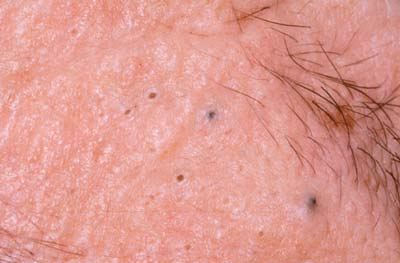 Как быстро избавиться шрамов от прыщей на лице
