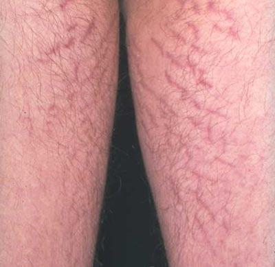 от чего появляются красные растяжки на ногах