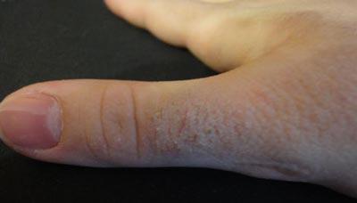 шелушение кожи на руках фото