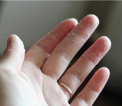 кожа шелушится между пальцами рук