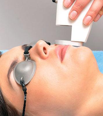 на фото показано, как избавиться от усов женщине лазерной депиляцией