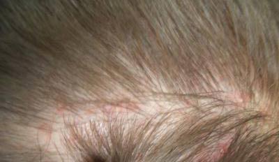Прыщики под волосами на голове