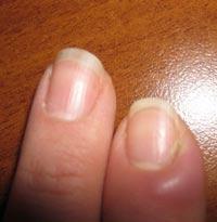 на фото нарыв на пальце возле ногтя