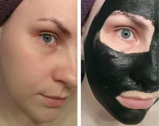 на фото маска с активированным углем на лице до и после применения