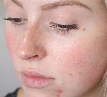 воспаление сальных желез на лице фото