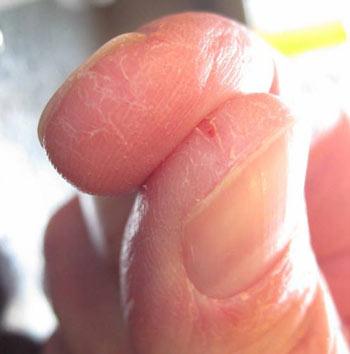 лопается кожа на пальцах рук фото