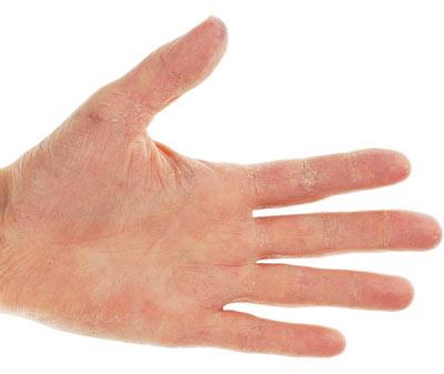 на фото сухость, шелушение и трещины на руках