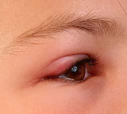 отек глаз, который вызвала аллергия