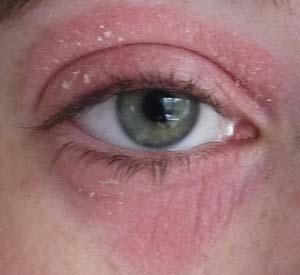 шелушение и покраснение под и над глазом