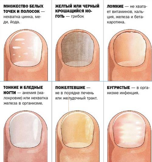 о чем говорят изменения цвета и проявления на ногтях