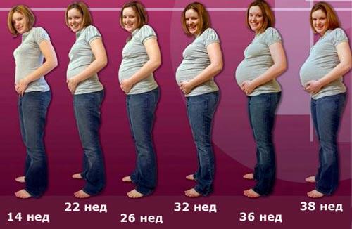 набухание молочных желез во время беременности - фото по неделям