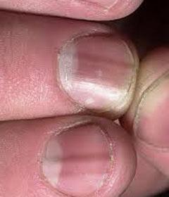 ногти на руках стали ребристыми фото