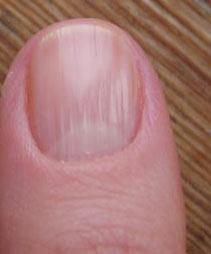 волнистый ноготь на большом пальце руки