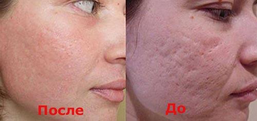 лечение шрамов на лице