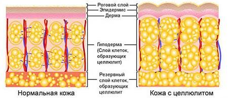 почему образуется под кожей целлюлит